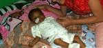 Gangguan yang Diderita Bayi Malang ini Cuma Bisa Diatasi dengan Cangkok Hati