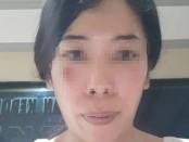 Korban Deassy Anugraheni dengan luka memar di wajah - foto: Istimewa