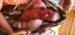 Butuh Perhatian, Bayi Teguh Lahir Tanpa Kaki dan Tangan